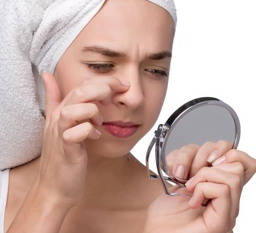 3 cách trị mụn đầu đen nhanh và hiệu quả nhất tại nhà