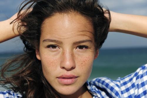 hướng dẫn 4 cách trị nám da mặt bằng thiên