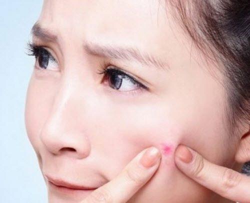 Nặn mụn làm da tổn thương và khó bôi kem trắng da